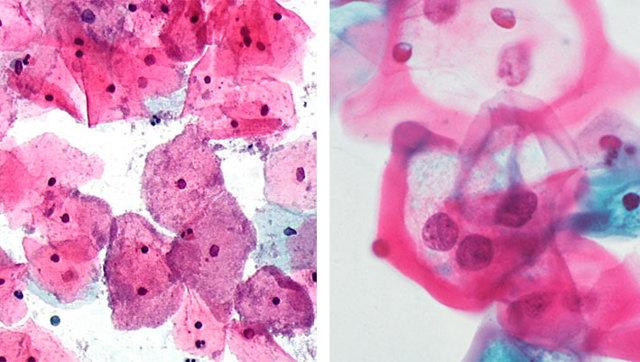 Бактериальный вагиноз: 5 главных симптомов и методов диагностики, обзор препаратов для лечения и советы гинеколога
