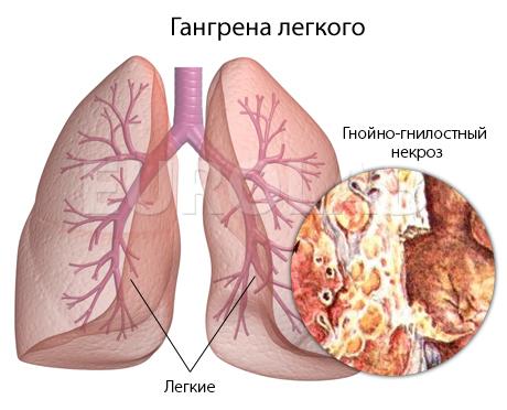 Абсцесс лёгкого: 4 основных причины, 11 ведущих симптомов, 3 метода лечения