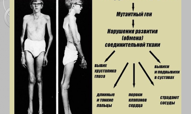 Cиндром Марфана: 5 органов-мишеней, 2 группы диагностических критериев и о возможности лечения