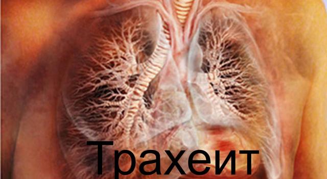 Трахеит: 9 этапов диагностики и 10 методов лечения заболевания, обзор лекарственных средств