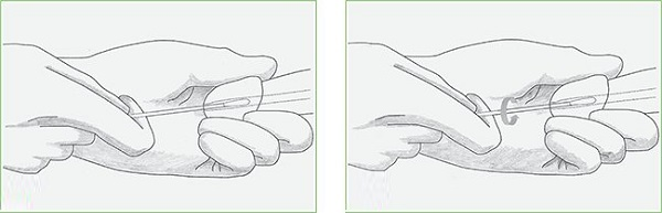 Анализ на вирус папилломы человека: 5 этапов подготовки к исследованию, 6 методов проведения и о возможных результатах
