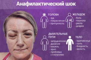 Анафилактический шок: 5 шагов спасения жизни