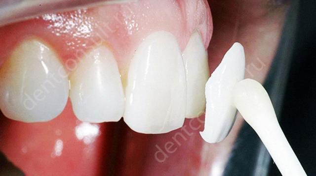 Гипоплазия: 3 разновидности патологии и 5 вариаций лечения гипоплазии зубов