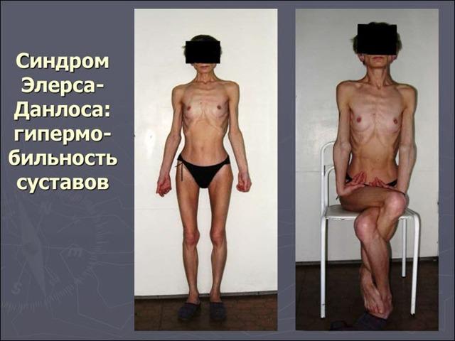 Синдром Элерса Данлоса: 10 типов заболевания и 5 основных симптомов