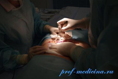Абдоминопластика: описание и особенности операции, техника выполнения и 8 возможных осложнений