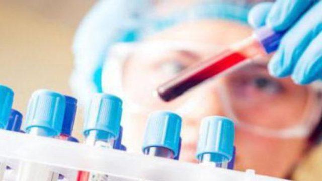 Аспартатаминотрансфераза: 7 причин для исследования, 4 главных этапа подготовки к анализу и интерпретация результатов