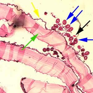Эхинококк: 6 частых локализаций личинок в организме человека, симптомы и методы лечения