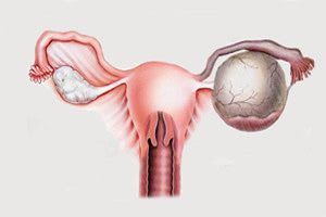 Апоплексия яичника: 5 причин, основные симптомы, 2 метода лечения