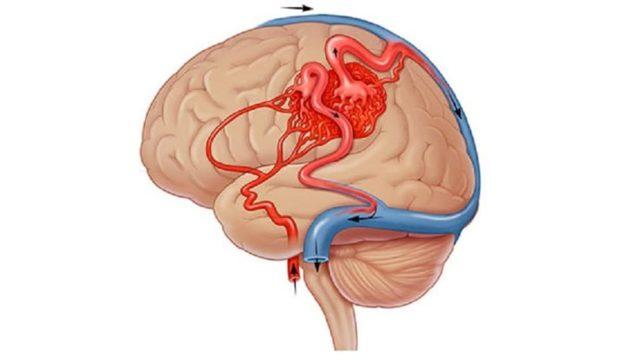АВМ (артериовенозная мальформация): 4 самых частых локализации, 5 методов лечения и о возможных осложнениях
