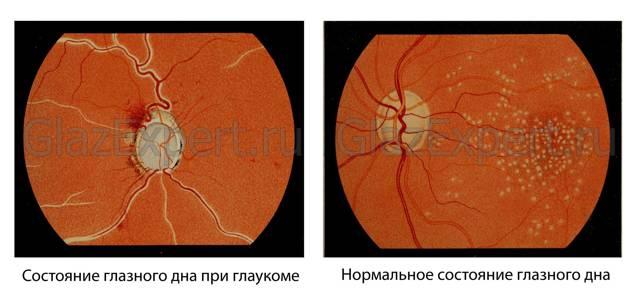 Глаукома: основные признаки разных форм болезни, методы диагностики и врачебный обзор 6 видов глазных капель