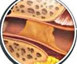 Серная пробка: 5 провоцирующих факторов, симптомы, методы лечения