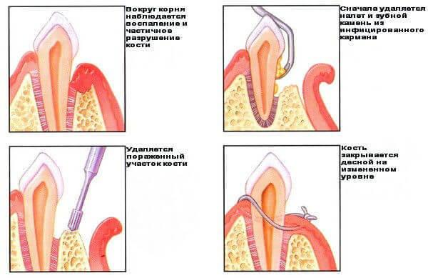 Гингивит: 4 эффективных способа лечения и особенности профилактики