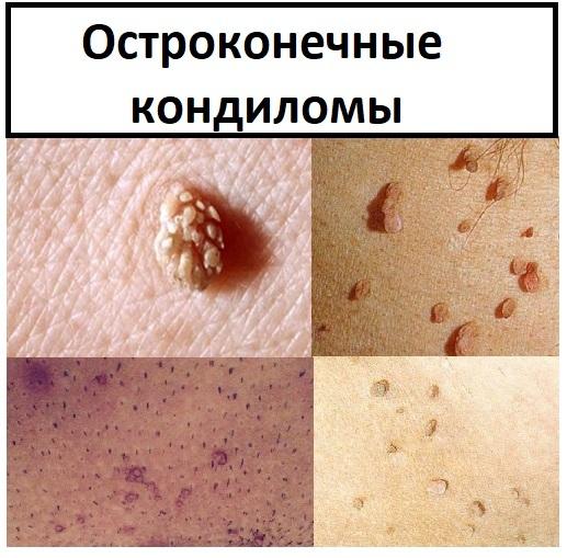 Папиллома: 4 вида инфекции кожи, симптомы и 3 варианта лечения проблемы
