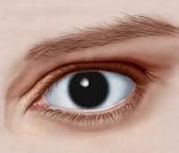 Аниридия: 5 форм патологии, 2 группы причин, симптомы, 2 метода лечения