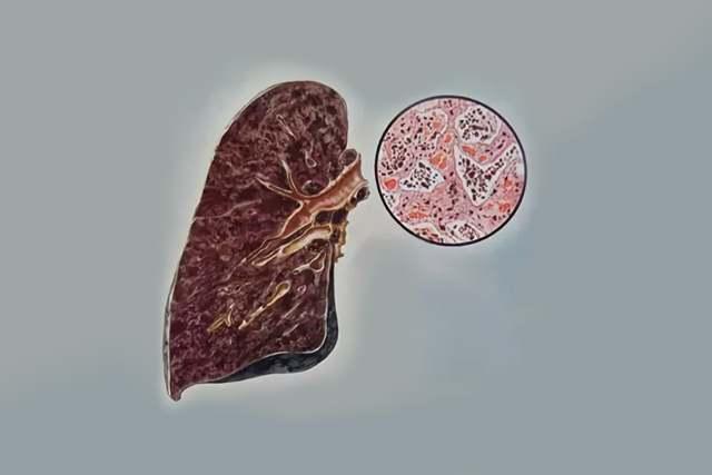 Антракоз лёгких: 7 факторов развития, 4 ведущих симптома, 5 опасных осложнений и 5 методов немедикаментозного лечения