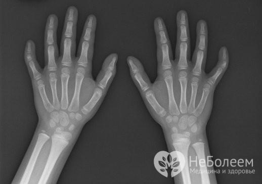 Брахидактилия: 5 разновидностей заболевания и прогноз для жизни