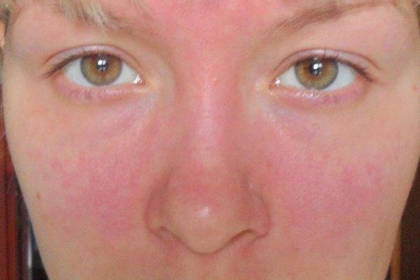 Аллергия на коже: 5 типов реакций, 9 провоцирующих факторов, основные методы лечения