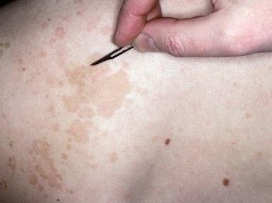 Отрубевидный лишай: 7 причин появления, 4 диагностических критерия, 2 метода лечения