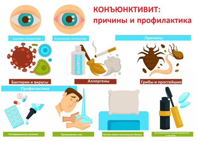 Аллергический конъюнктивит: 6 симптомов заболевания и обзор врачом-офтальмологом методов его лечения