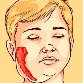 Болезнь свинка: 6 органов или систем, поражённых вирусом и мероприятия в очаге инфекции