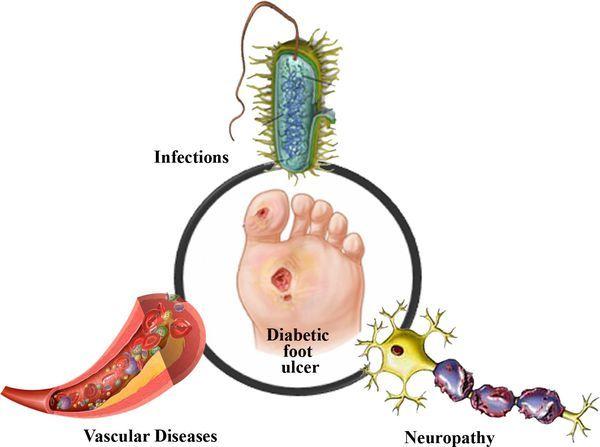 Диабетическая стопа: причины, симптомы, 7 этапов лечения и 5 принципов профилактики