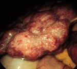 Аутоиммунный гепатит: 2 формы, 8 методов диагностики и о возможностях лечения