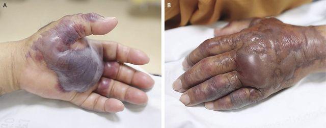 ДВС синдром: 14 основных причин, множественные симптомы, 6 этапов лечения, профилактика и прогноз