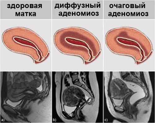 Аденомиоз: 3 стадии, 7 эхопризнаков и обзор 4-х методов консервативного и оперативного лечения