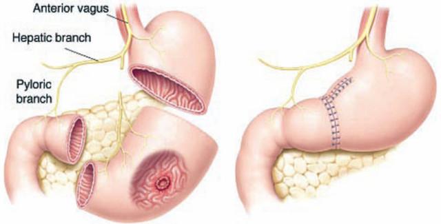 Резекция желудка: 6 абсолютных показаний, обзор 2-х модификаций и интраоперационных осложнений