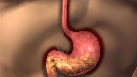 Антральный гастрит: 8 ведущих причин, 4 симптома, методы лечения