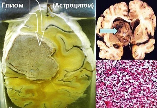 Глиома головного мозга: 5 причин, 15 симптомов, методы лечения