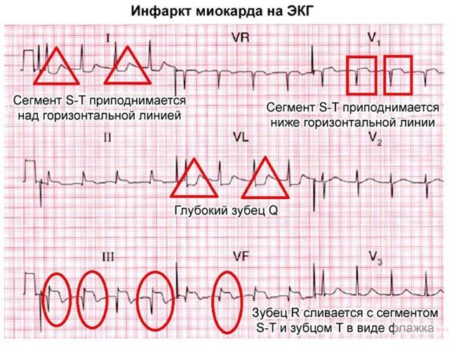 Что такое инфаркт? Обзор 8 групп препаратов и 5 шагов оказания первой помощи