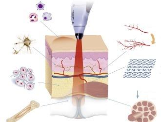 Грыжа позвоночника: 14 симптомов в зависимости от уровня поражения и 8 способов лечения без операции