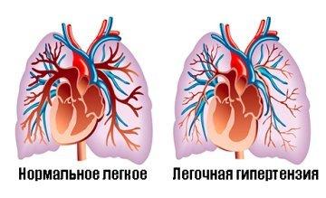 Эхокардиография: 6 видов, 12 заболеваний, которые можно обнаружить с помощью этого метода