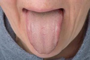 Волосатый язык: 4 важных рекомендаций, которые помогут избежать данную патологию
