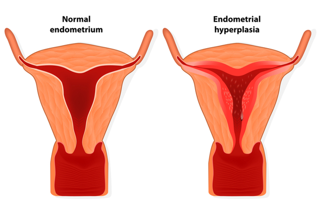 Гиперплазия эндометрия: 5 причин, симптомы, методы лечения