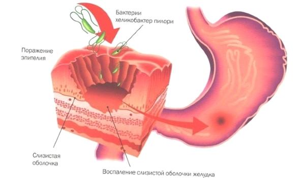 Атрофический гастрит: 5 главных симптомов и врачебный обзор 6 групп препаратов для лечения, советы по питанию