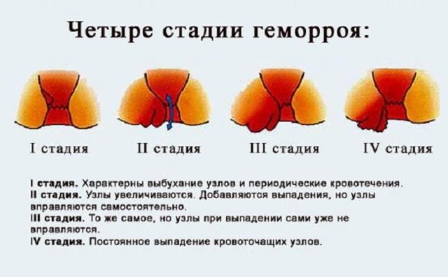 Геморрой у женщин: основные причины, симптомы, методы лечения