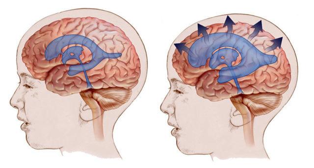 Гидроцефалия головного мозга у детей: разновидности и 5 методов хирургического лечения