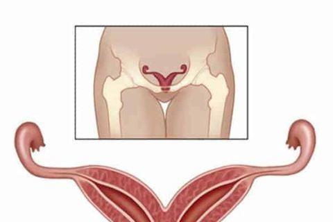 Двурогая матка: врач-гинеколог о 7 ведущих признаках, 6 методах диагностики и о возможности лечения