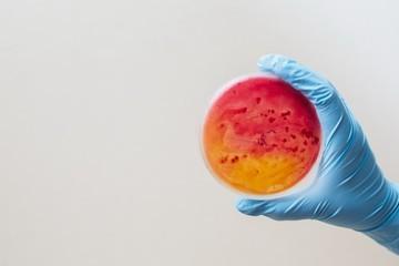 Анализ АСЛО: 3 правила подготовки к сдаче анализа крови