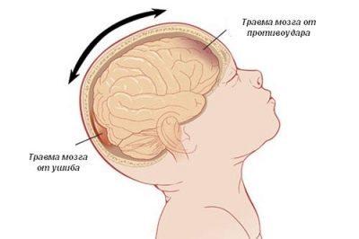 Сотрясение мозга у ребенка: симптомы, 4 ведущих причины и 5 грозных осложнений