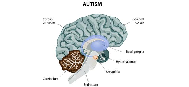 Аутизм: врач-психиатр о 5 главных симптомах и настораживающих факторах развития болезни