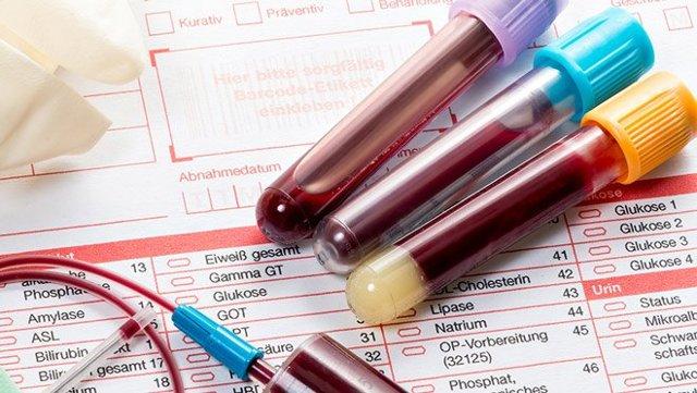Антимюллеров гормон: 6 показаний для анализа, норма, расшифровка результатов