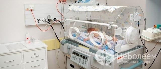 Асфиксия новорожденных: 17 частых причин развития асфиксии