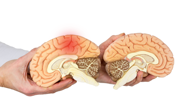 Геморрагический инсульт: ТОП-6 групп лекарственных средств для лечения и обзор дальнейших перспектив