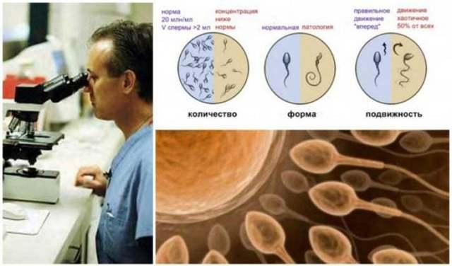 Спермограмма: 8 ключевых патологий спермиев и обзор всех показателей