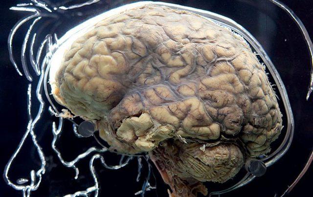 Болезнь Крейтцфельдта Якоба: 4 вида, 6 общих симптомов, методы лечения