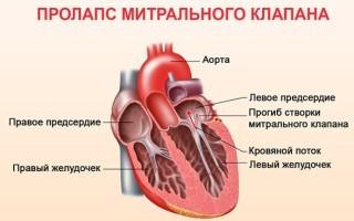 Пролапс митрального клапана: 8 причин приобретённой патологии и 5 основных проявлений