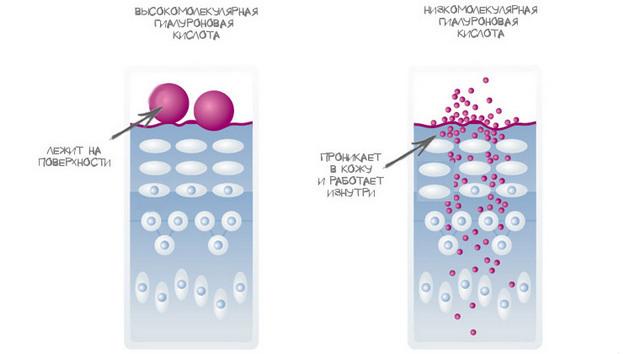Гиалуроновая кислота: особенности препарата, 3 способа применения в косметологии
